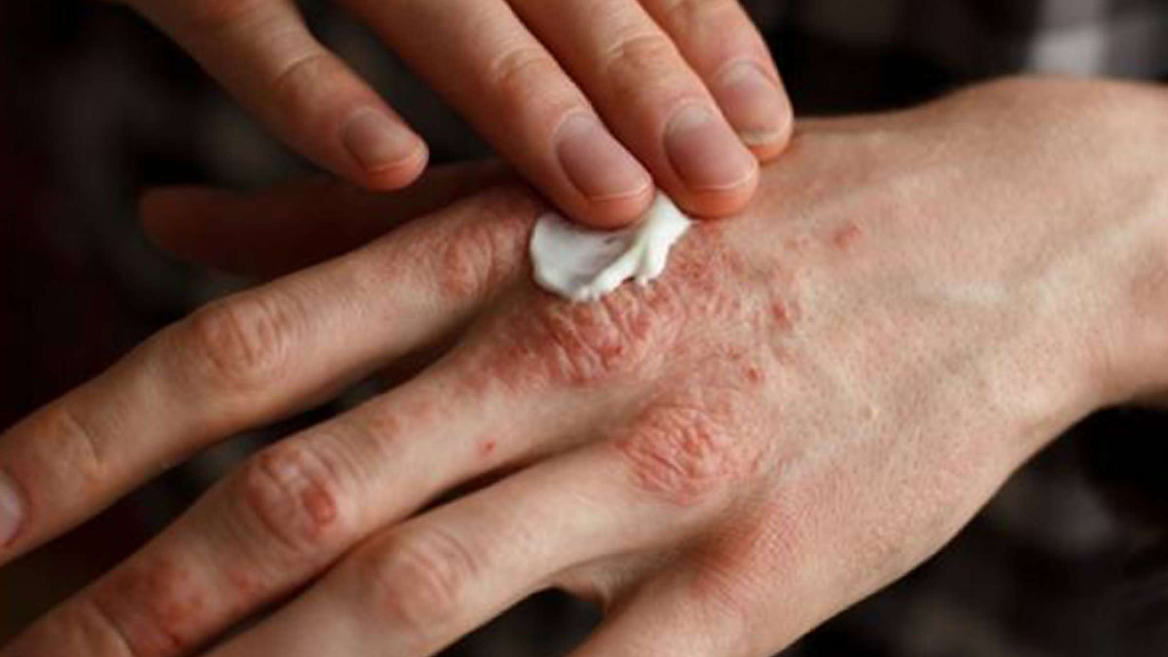 طبیعی-درمانی-کاظمی-دو-بیماری-شایع-پوستی