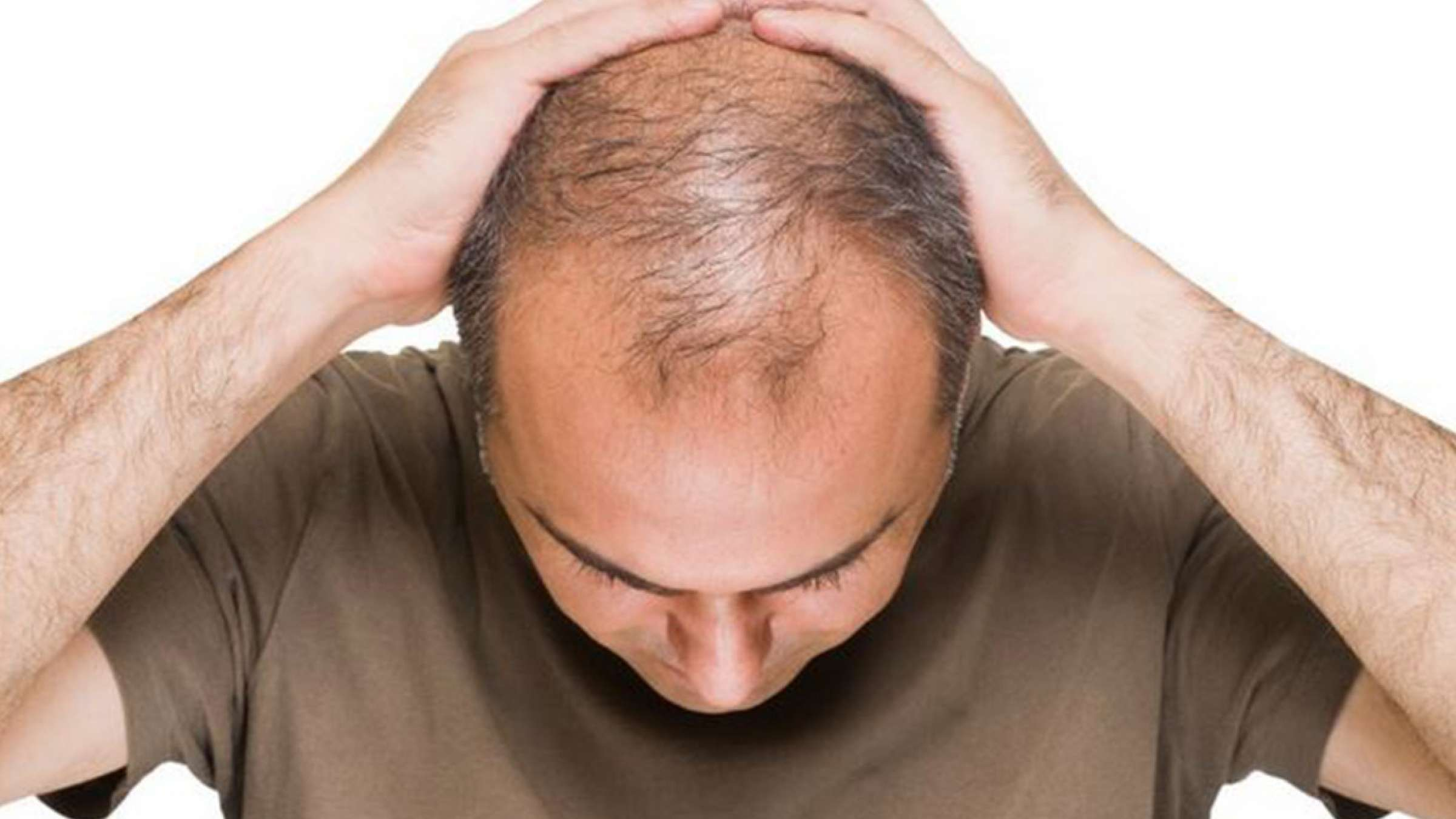 طبیعی-درمانی-کاظمی-ریزش-مو