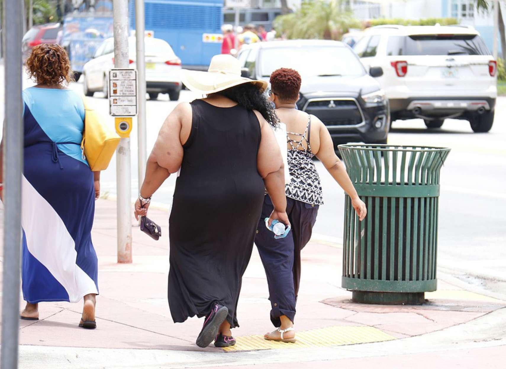 طبیعی-درمانی-کاظمی-چطور-بفهمیم-چاق-هستیم